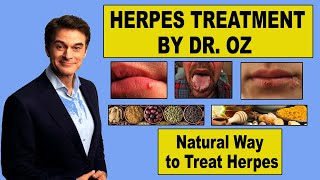Dr Oz Herpes Cure |  Natural Way To Treat Herpes(Herpes is a sexually transmitted skin infection by which, around 65% of world's population is suffering. This is not a life threatening disease but once you have it, ..., 2017-02-27T10:15:03.000Z)