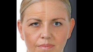 بالفيديو : وصفات طبيعية لإزالة تجاعيد الوجه نهائيا