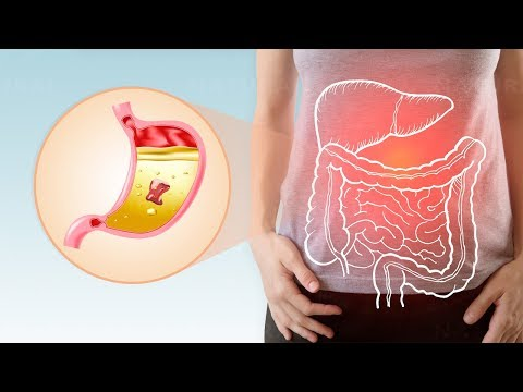 6 Surprising Reasons to Take Digestive Enzymes