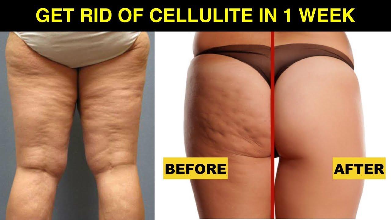 Cellulite treatment oxford