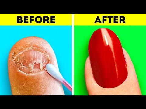 Amazing Nail Transformation || Girly Beauty Tricks