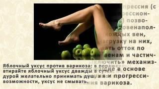 видео 5 НАТУРАЛЬНЫХ МАЗЕЙ ПРОТИВ ВАРИКОЗА