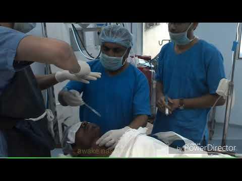 Blind awake nasal intubation easy solution of difficult intubation