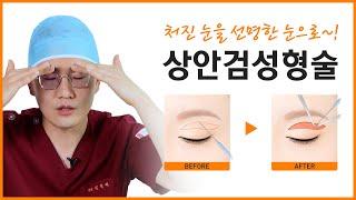 상안검 수술/처진 눈을 선명한 눈으로