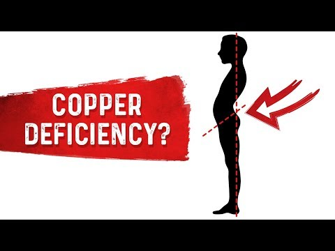 do-you-have-a-copper-deficiency?