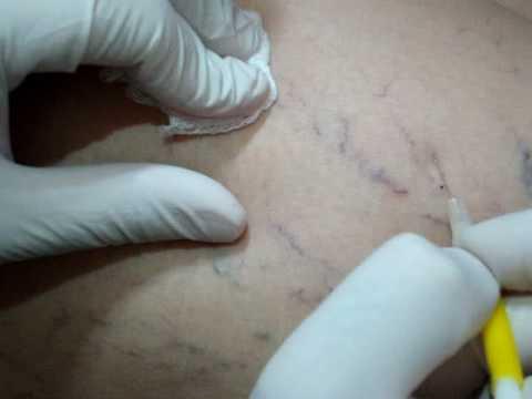 HImFu (cavitatie) - Tratamente corporale