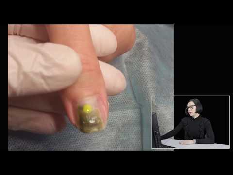 Синегнойная палочка фото на ногтях