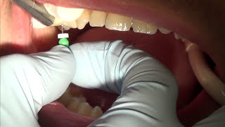 root canal treatment (part 1)
