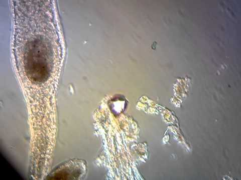 fish tank bacteria under microscope youtube