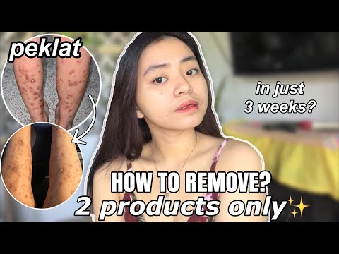 EFFECTIVE PEKLAT REMOVER✨ (AFFORDABLE PRODUCTS)
