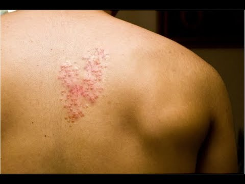 Pictures Of Shingles On The Body, Treatment For Herpes Zoster, Foods To Avoid With Shingles