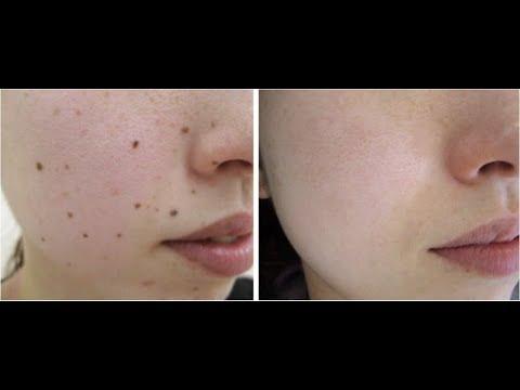 como quitar las verrugas dela cara y cuello