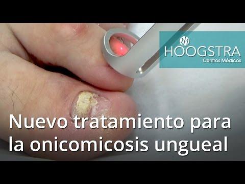 Nuevo tratamiento de onicomicosis ungueal con láser Lotus y Helios (16041)