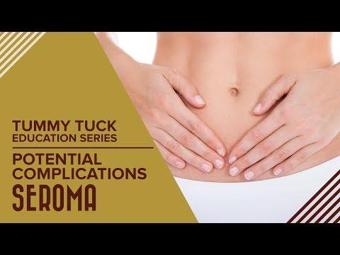 Tummy Tuck - Potential Complications - Seroma - YouTube