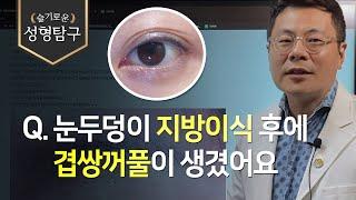 [성형기본지식] Q. 눈두덩이 지방이식 후 겹쌍꺼풀이 …