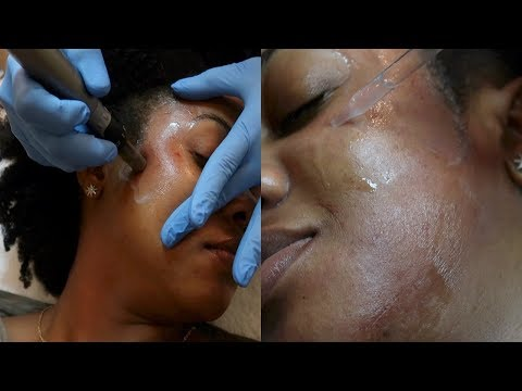 My First DermaPen Experience || Clearing Up Dark Spots/Hyperpigmentation