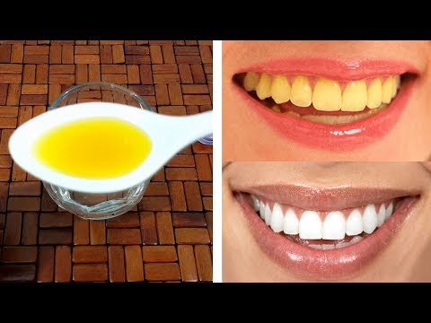 3 Simple Ways For Gum Protection Teeth Whitening Urdu Hindi