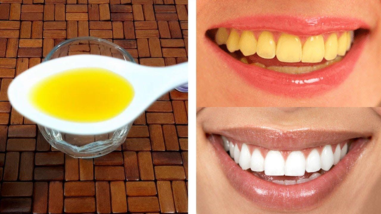3 Simple Ways For Gum Protection Teeth Whitening Urdu Hindi Youtube