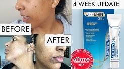hqdefault - Differin Make Acne Worse