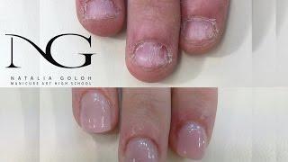 Наращивание на проблемных ногтях (гель+акрил). Periscope / Modeling on problem nails