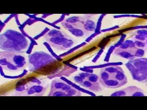Difteria enfermedad infecciosa aguda epidémica bacilo de Klebs-Löffler