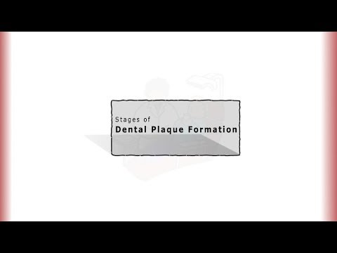 Stages of Dental Plaque Formation