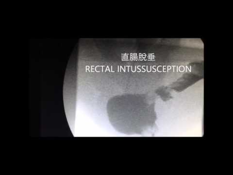 Defecating Proctography - Chinese Traditional
