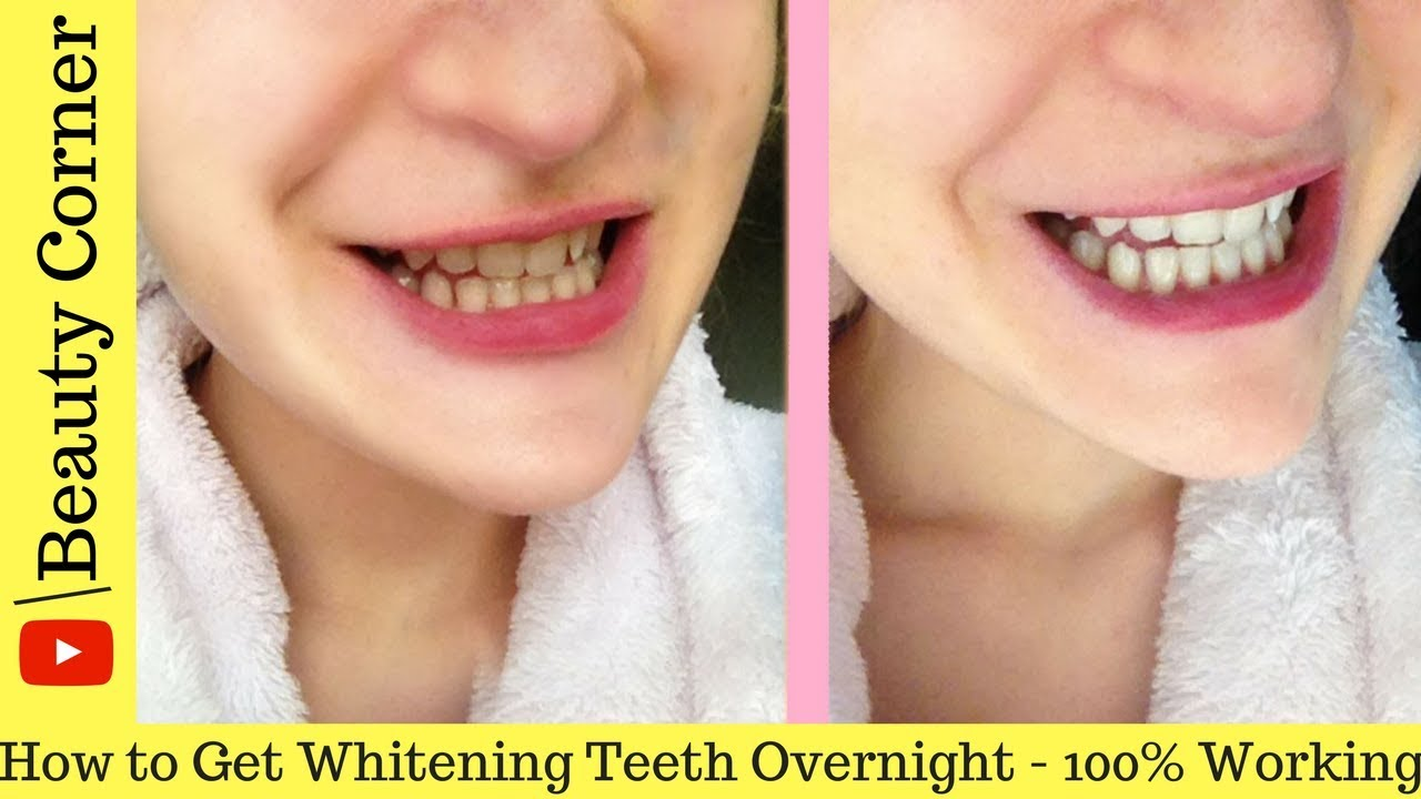 How To Whiten Teeth At Home In One Day How To Have Naturally White