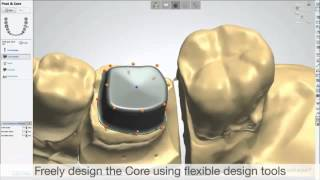 dental system 2013 post and core 3shape cad cam