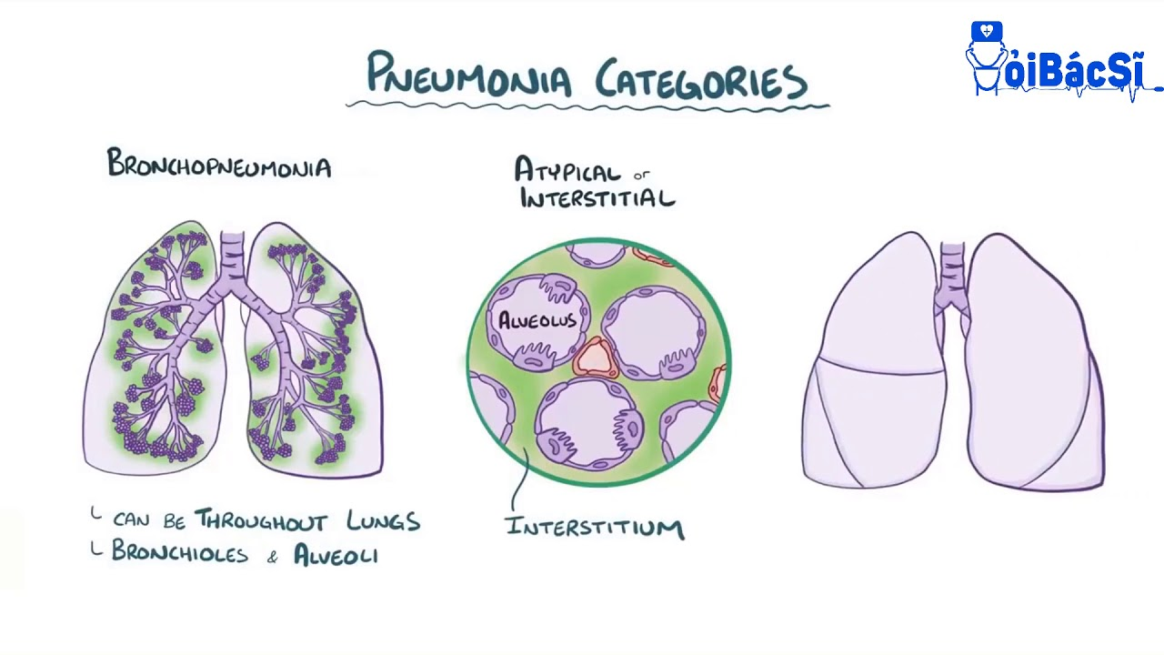 Viêm phổi! Nguyên nhân và cách chữa viêm phổi cấp