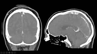 Do profundo venoso da trombose radiologia seio