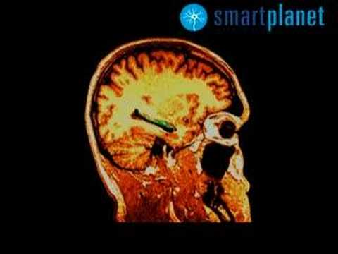 Células madre: las neuronas se recuperan