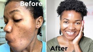 5 Remedies For Dark Spots, Acne Scars & Reduce Skin Hyperpigmentation