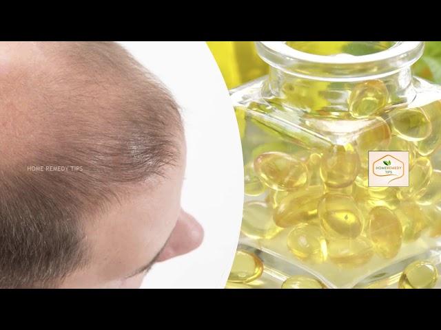 Regrow Hair on Bald Head - Powerful Natural Solution