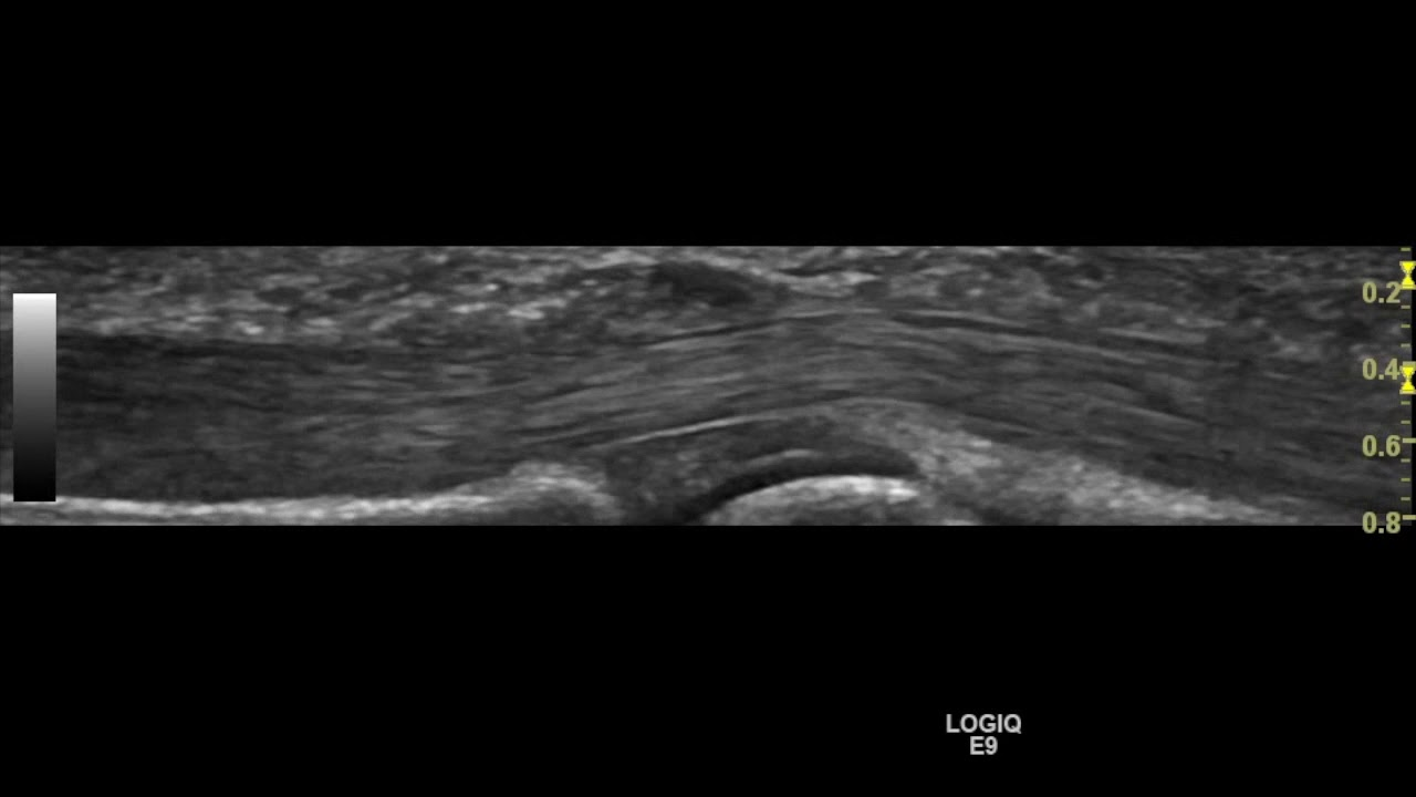 Thickened A1 pulley demonstrated on ultrasound - YouTube