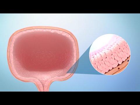 Treatment for Bladder Cancer