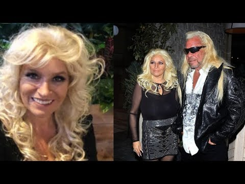 beth-chapman-finally-comes-forward-and-reveals-shocking-news-about-her-battle-of-life