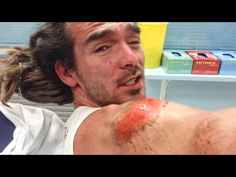 BRUTAL SKATING ACCIDENT