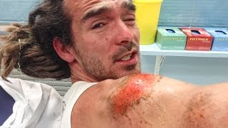 One of FunForLouis's most viewed videos: BRUTAL SKATING ACCIDENT