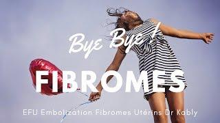 🚺   Embolisation Fibrome Utérin Étude d'un cas
