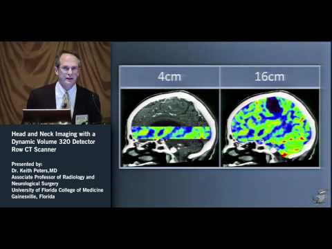 Head & Neck Imaging-Dynamic Volume 320 Row CT Scanner - Keith Peters, MD (2 of 3)