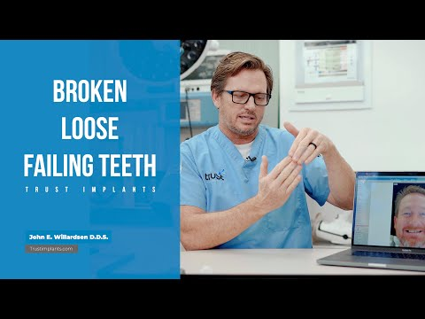 Dental Implants: Upper And Lower Zirconia All-on-6 Case Of The Day Trustimplants