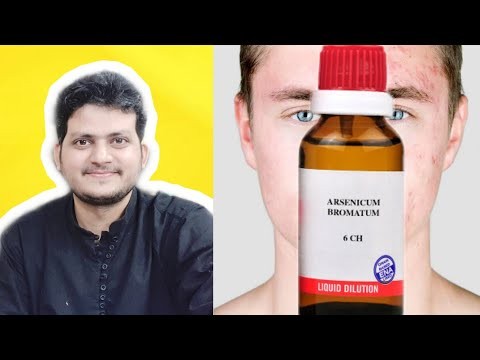 Treat Pimples in 15 days with A single Homeopathic medicine ? from YouTube · Duration:  5 minutes 3 seconds