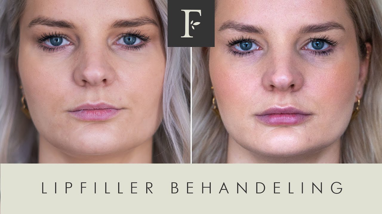 Lipfiller Behandeling / Filler Cottage