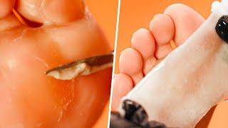 Extremely SATISFYING Calluspeeling + Reflexology Foot Care