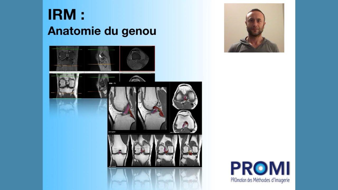 Download IRM : anatomie du genou