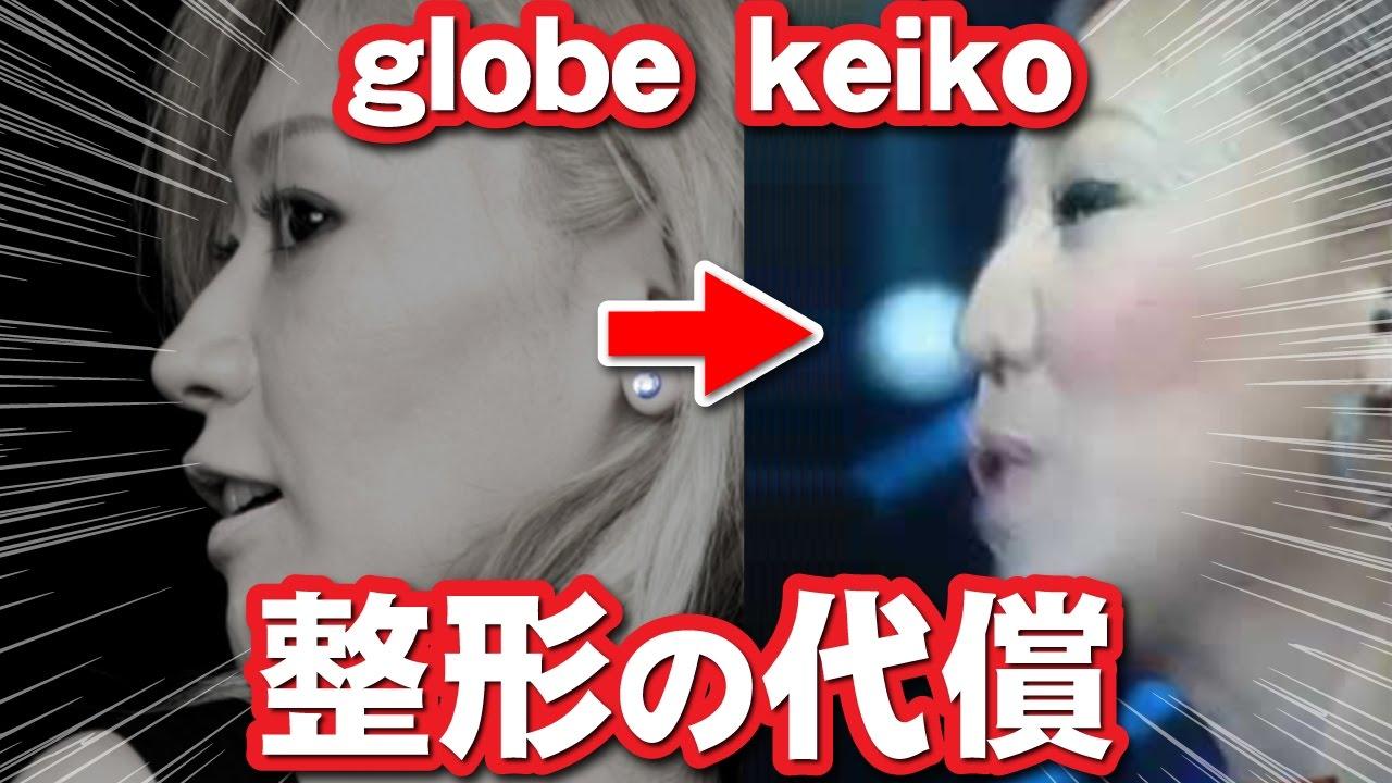 失敗 Keico 鼻 整形