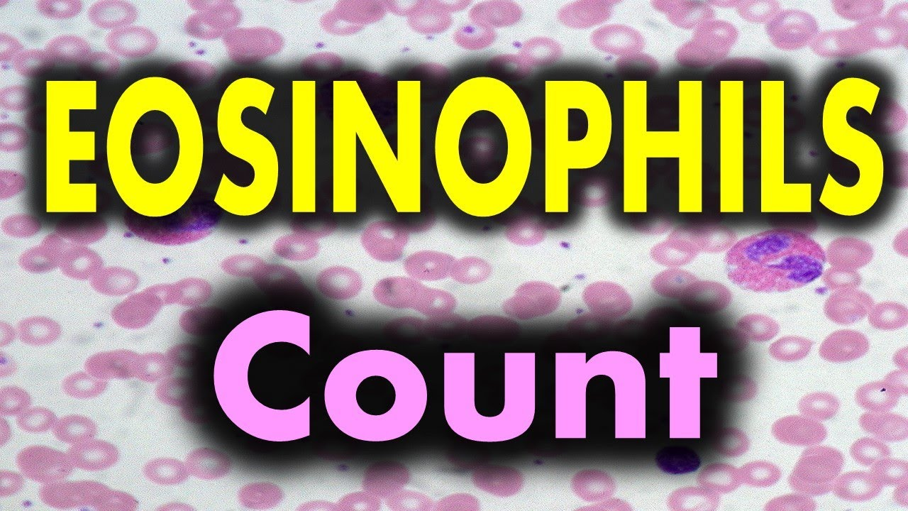 Eosinophils High