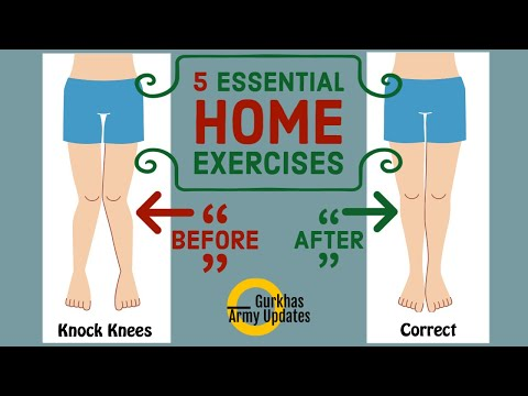 5 ESSENTIAL Exercises To Cure KNOCK KNEES At Home || Make This LockDown Productive