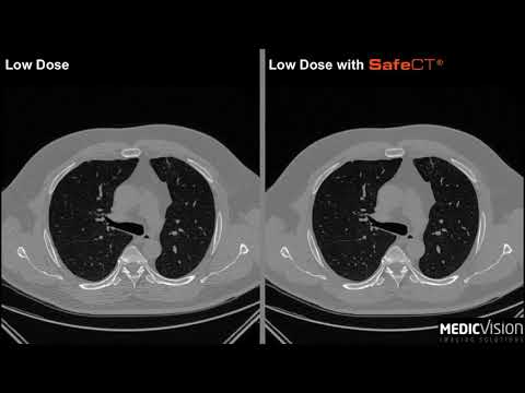 SafeCT® Low-Dose CT Lung Cancer Screening